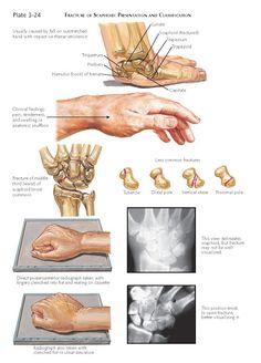 Medical Art, Medical Field, Medical School, Fracture Healing, Bone Grafting, Np School, Hand Anatomy, Ligament Injury, Learning