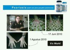 Buat yang kagak tahan ama yang namanya #psoriasis... dan katanya kagak ada obatnya.... ternyata cerita lama ... TF bisa tuh sembuhin psoriasis....