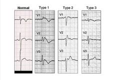 Brugada syndrome is a genetic disease with autosomal dominant inheritance. ECG tracings reveal an incomplete right bundle branch block with 1 of 3 patterns of ST elevations in the anterior precordial leads. Alcohol is a known trigger that can unmask or exacerbate ECG changes. Patients may develop ventricular tachyarrhythmias, leading to syncope, cardiac arrest, or sudden cardiac death. The syndrome is thought to be responsible for 20% of sudden deaths in patients with structurally normal…