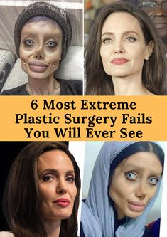6 Most Extreme Plastic Surgery Fails You Will Ever See Bad Celebrity Plastic Surgery, Extreme Plastic Surgery, Bad Plastic Surgeries, Funny Mugshots, Human Oddities, Wellness, Platinum Blonde Hair, Stay Young, Yoga Benefits