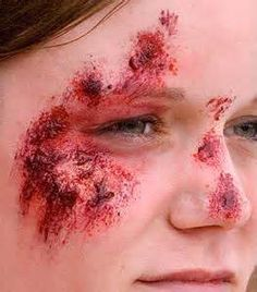 Abrasions And Its Types Natural Herbs Healing Health Advice Medicine