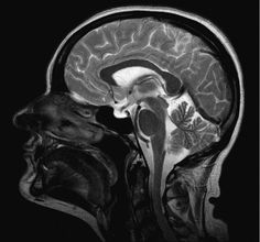 Related image Epilepsy Awareness Month, Cell Forms, Cells And Tissues, Know Thyself, Life Form, Skull, Anatomy, Image, Medical