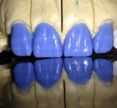 Dental Implants, Tooth Fairy, Teeth, Weird, Wax, Couple Activities, Dental Laboratory, Dental Anatomy, Dentists