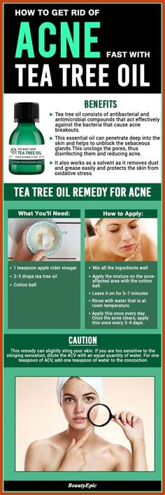 Homemade Acne Treatment - Acne Myths - Get the Real Facts About Acne *** Continue with the details at the image link. #alopecia