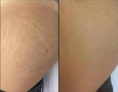 Home Remedies to Eliminate Stretch Marks in 2 Weeks Facial Treatment, Layers Of Skin, Anti Cellulite, Quites, Acne Scars, Stretch Marks, Healthy Tips, Home Remedies, Camouflage