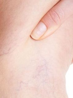 """Telangiectazia, cunoscută sub numele de vene de sânge sparte, vinișoare roșii sau vene """"în pânză de păianjen"""", apare pe picioare, pe glezne, pe față sau pe alte zone ale corpului. Deși sunt vizibile și foarte la suprafața pielii, aceste vene nu sunt periculoase pentru sănătate, și nu dau simptome dureroase. Pot fi însoțite în unele cazuri de o senzație de arsură sau mâncărime. Beauty Care, Beauty Hacks, Hair Beauty, Natural Health Remedies, Home Remedies, Varicose Vein Remedy, Health Snacks, Do It Yourself Home, Dental Health"""