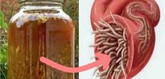 This natural antibiotic is regarded to be the most powerful one by numerous experts and it effectively cures infections and destroys parasites. The master cleansing tonic is in fact an antibiotic which destroys gram-positive and gram-negative bacteria. Master Tonic, Les Parasites, Gram Negative Bacteria, Types Of Arthritis, Natural Antibiotics, Turmeric Root, Natural Cures, Hot Sauce Bottles, Home Remedies