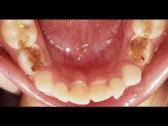 Natural Teeth Whitening Remedies Kill Tooth Pain Nerve In 3 Seconds Permanently With This Tooth ache remedy… - Teeth Whitening Remedies, Natural Teeth Whitening, Teeth Health, Healthy Teeth, Dental Health, Dental Care, Natural Headache Remedies, Natural Home Remedies, Tooth Pain Relief