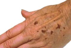 Find age spot treatments and home remedies for age spots and sun spots, using natural cures and herbal products.