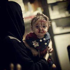 يًُتّم الأطفال و انتُهكت طفولتهم.. #دوما  They are children, their childhood violated .. #Douma Ph: AFP