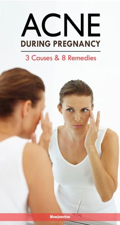 Rise in hormonal level is primary reason of acne during pregnancy. MomJunction helps you know other causes,signs, treatment methods & home remedies for acne. Pregnancy Acne, Pregnancy Tips, Pregnancy Humor, Cystic Acne Treatment, Pimples Remedies, Pregnancy Nutrition, Home Remedies For Acne, Natural Remedies