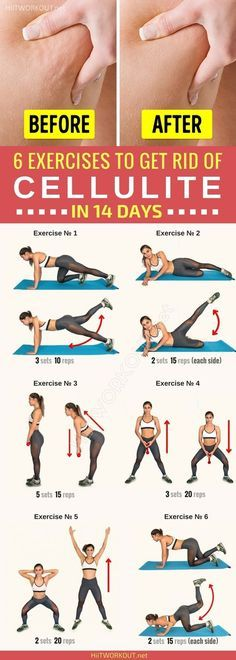 This workout will really help you minimize the effects of cellulite or prevent t. This workout will really help you minimize the effects of cellulite or prevent them in case you're part of the lucky Causes Of Cellulite, Cellulite Exercises, Cellulite Remedies, Reduce Cellulite, Anti Cellulite, Cellulite Workout, Aerobic Exercises, Fitness Exercises, 7 Workout