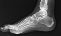 Foot X ray for Doctor office