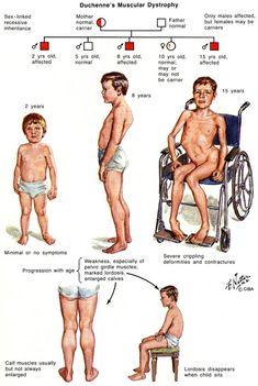 Mus5a. Duchenne muscular dystrophy (1)