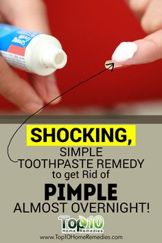 Shocking Simple Way to Get Rid of a Pimple Fast at Home