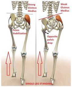 Prevalence of Gluteus Medius Weakness with Nonspecific Low Back Pain | Brent Brookbush