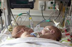 Conjoined boys separated by doctors at Dallas hospital; twins attached at chest born July 15