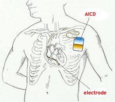 Automatic Implantable Cardioverter Defibrillators AICD Surgery In India