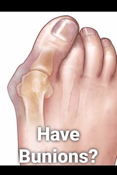 This device helps reduce bunions and foot pain, check it out! care how to get rid Correct Bunions Naturally! Bunion Remedies, Foot Remedies, Health Remedies, Health And Beauty Tips, Health Advice, Health Care, Bunion Relief, Foot Pain Relief, Reduce Cellulite