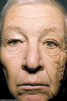 Bill ist LKW-Fahrer in den USA. Er ist 69 Jahre alt. Oder doch 89? Bill hat zwei Gesichter und dies nicht ohne Grund: Seine linke Gesichtshälfte ist infolge der permanenten & einseitigen Belastung durch UV-Strahlung enorm gealtert. Inzwischen ist ein fachgerechter Sonnenschutz sein ständiger Begleiter: UV-B-Filter beugen Sonnenbrand und Hautkrebs vor, UV-A-Filter bekämpfen eine frühzeitige Alterung der Haut. Prüfen Sie noch heute Ihren Sonnenschutz. Haut und Spiegelbild werden Ihnen danken!