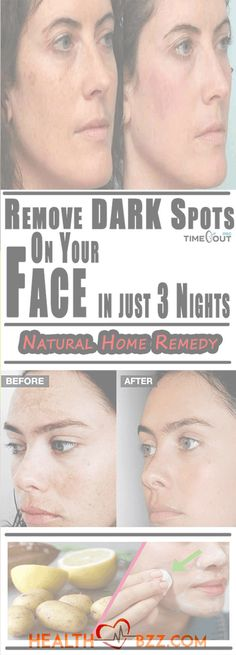 Today we're going to show you how to prepare several recipes that will remove dark spots and stains from your face. The remedies are completely natural, so you don't have to worry about adverse sid…