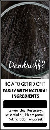 You have silky long hair, but you are ashamed of dandruff? Avoiding to wear a black dress? And it also causes itching? It's time to say goodbye to them, you can get a dandruff free hair with the help of natural home remedies for dandruff. Home Remedies For Dandruff, Hair Dandruff, Home Remedies For Hair, Natural Home Remedies, How To Stop Dandruff, How To Cure Pimples, Dandruff Solutions, Apple Cider Vinegar Shampoo