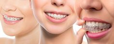 Neo Smiles Dental Studio is a premier braces specialist clinic located at Bedok Central. We provide the latest in braces treatments, including metal & ceramic fixed braces, and clear aligner systems such as Invisalign & MBrace. #orthodontistsingapore http://neosmiles.com.sg