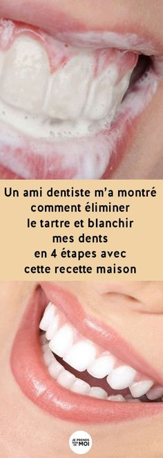 A dentist friend told me how to remove tartar, gingivitis and whiten my teeth IMMEDIATELY with this homemade recipe ! Beauty Care, Diy Beauty, Beauty Hacks, Beauty Tips, Beauty Skin, Beauty Products, Homemade Beauty, Beauty Ideas, Long Hair Tips
