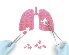 Read about a case report of a patient with Kartagener syndrome suffering from bronchiectasis, who was successfully treated by undergoing a lobectomy.