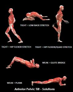 How+to+correct+bad+posture+-+Anterior+Pelvic+Tilt+Solutions