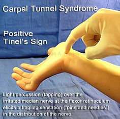 Carpal Tunnel Syndrome - Portland and Lake Oswego Surgery - Tinel's diagnostic Sign for median nerve irritation Hand Therapy, Massage Therapy, Physical Therapy, Occupational Therapy, Carpal Tunnel Surgery, Carpal Tunnel Relief, Pain Relief, Carpel Tunnel Syndrome, Carpal Tunnel Exercises