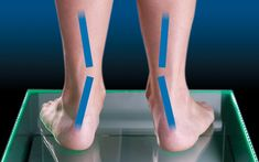 What is Over Pronation? Pronation occurs as weight is transferred from the heel to the forefoot when walking or running and the foot naturally rolls inward Wide Shoes, Top Shoes, Dress Shoes, Women's Shoes, Lightweight Running Shoes, Best Running Shoes, Motion Control Running Shoes, Mens Walking Shoes, Shin Splints