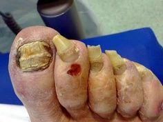 Hongos en las uñas de los pies y manos 7 tratamiento natural para sanar: Onicomicosis - YouTube