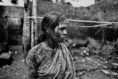 Blood streaking down her face, a sex worker stands in the Kandupatti brothel in Dhaka, after being beaten by a client during a payment dispute.