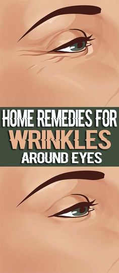 home-remedies-for-wrinkles-around-eyes1
