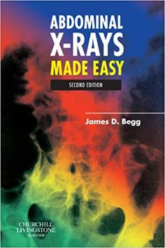 ABDOMINAL X-RAYS MADE EASY.pdf free download.  File size :- 14.20 MB     File type :- PDF  Description...