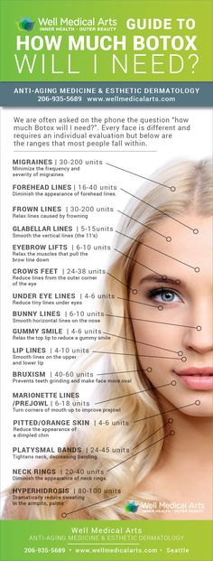How much Botox will you need? This infographic will show you a range of units per area. In Seattle call 206-935-5689 to schedule your consultation.