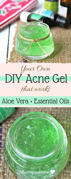 diy acne gel can help you to get rid of hateful acne and pimples. It also lightens dark spots and scars and calms your red, inflamed and painful acne. Check out how does it can help you.