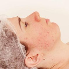 Acne scars are quite common, but if they interfere with the way you feel about yourself or make you want to hide under a paper bag instead of spending a night on the town with your friends, it's time to look into treatment options. There are several treatment methods available, and you and your dermatologist can work together to choose the one that's right for you.