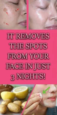 Remove Spots from your face in just 3 nights. It works 100%.