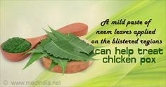 Natural home remedies for chicken pox offers you simple and natural methods to treat chicken pox, a common infection caused by varicella-zoster virus. Chicken Pox, Cold Sore, Natural Home Remedies, Alternative Medicine, Kid Stuff, Healthy Living, Herbs, How To Apply, Treats