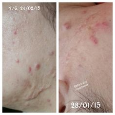 Today. 2nd treatment  #Roscea #Naturaltreatment