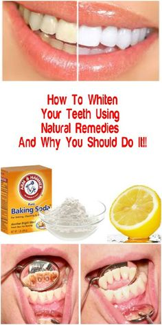 How To Whiten Your Teeth Using Natural Remedies And Why You Should Do It!!   The perfect Hollywood smile is something we all want, perfectly white teeth, aligned to perfection making your smile even prettier. There are a number of dental procedures which can help you get your teeth pearly white, but they can be quite costly and not everyone can afford them.