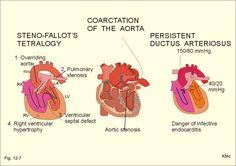Congenital Heart Defects - Coarctation of the Aorta Cardiac Nursing, Nursing Mnemonics, Pediatric Nursing, Nursing Tips, Nursing Notes, Coarctation Of The Aorta, Chd Awareness, Family Nurse Practitioner, Congenital Heart Defect