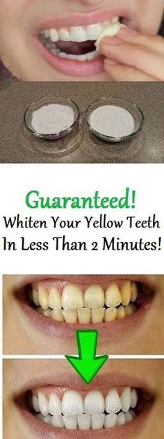 Natural Teeth Whitening Remedies how to whiten teeth naturally at home without having to pay a visit to your dentist Teeth Whitening Methods, Natural Teeth Whitening, Whitening Kit, Skin Whitening, Face Whitening Home Remedies, Beauty Secrets, Diy Beauty, Beauty Care, Beauty Products