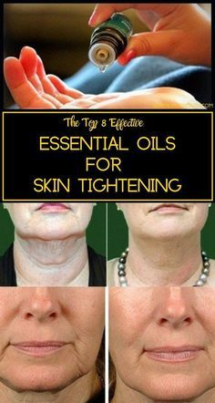 Essential Oils for Skin Tightening - Get rid of Saggy skin Here& the list of some amazing vital essential oils that prevent skin aging and promote skin tightening. Therapeutic Essential Oils, Essential Oils For Skin, Essential Oil Blends, Relleno Facial, Sagging Skin, Health And Beauty Tips, Health Tips, Beauty Guide, Skin Treatments