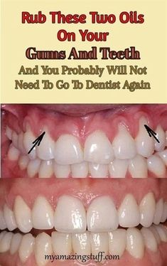 Gingivitis is an inflammation of the gums. It occurs due to the accumulation of dental plaque, or deposits of teeth that are caused by bacteria that cause infection. It is most often manifested by gum. Gum Health, Teeth Health, Healthy Teeth, Dental Health, Dental Care, Oral Health, Health And Beauty Tips, Health Tips, Health Benefits