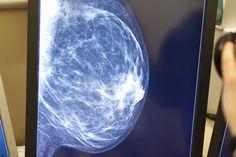 Mamografía en pantalla, llega el momento de analizar. Diagnóstico ginecológico por imagen en Salud de la Mujer Dexeus.