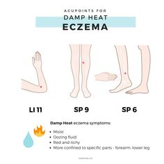 How does Chinese Medicine view Eczema - KANPOBLISS holistic natural remedies Acupuncture Points Chart, Reflexology Points, Acupressure Points, Cupping Therapy, Massage Therapy, Health Chart, Eczema Symptoms, Trigger Point Therapy, Acupressure Treatment