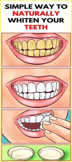 Whiten Your Yellow Teeth In Less Than 2 Minutes! Whiten Your Yellow Teeth In Less Than 2 Minutes! Whiten Your Yellow Teeth In Less Than 2 Minutes! Health Remedies, Home Remedies, Herbal Remedies, Home Health Care, Oral Health, Women's Health, Health Benefits, Natural Cures, Natural Skin